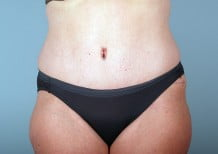 Tummy Tuck Patient 2203