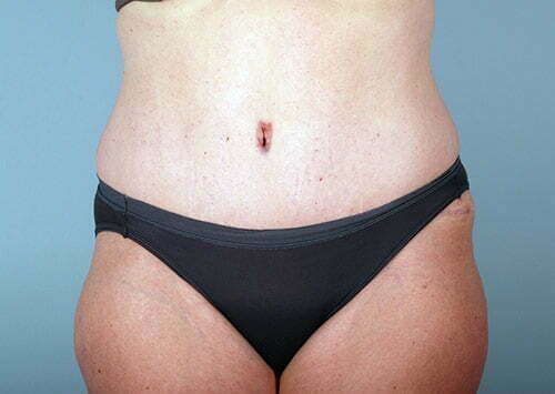 abdominoplasty-2203a-after
