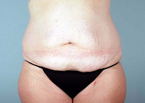 abdominoplasty-2203a-before