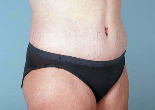 abdominoplasty-2203b-after