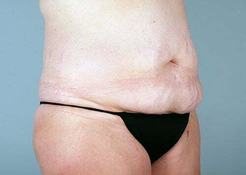 abdominoplasty-2203b-before