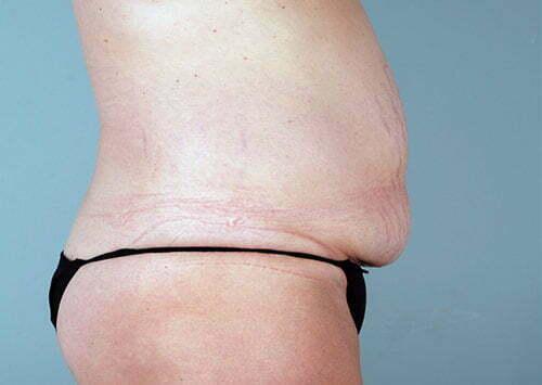 abdominoplasty-2203c-before