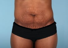Tummy Tuck Patient 2211