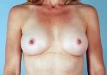 Breast Augmentation Patient 2037