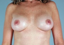 Breast Augmentation Patient 2044