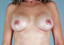 Breast Augmentation Patient 2044