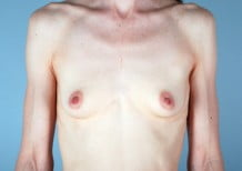 Breast Augmentation Patient 2051