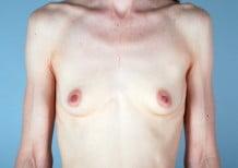 Breast Augmentation Patient 2051