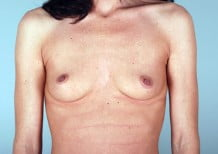Breast Augmentation Patient 2097
