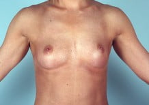 Breast Augmentation Patient 2115
