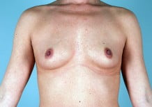 Breast Augmentation Patient 2164