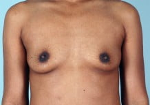Breast Augmentation Patient 2171