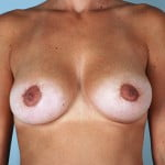 breast-lift-with-augmentation-2545a-after