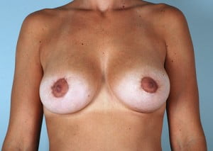 Breast Lift with Augmentation Patient 2545