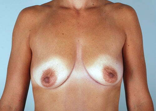 breast-lift-with-augmentation-2545a-before