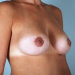 breast-lift-with-augmentation-2545b-after