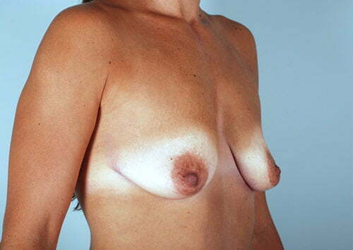 breast-lift-with-augmentation-2545b-before