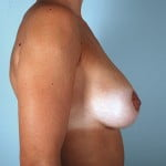 breast-lift-with-augmentation-2545c-after