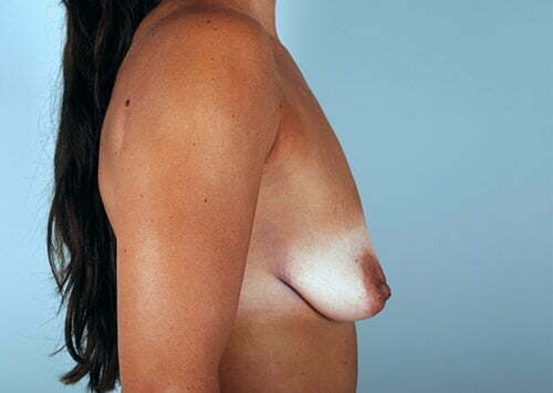breast-lift-with-augmentation-2545c-before