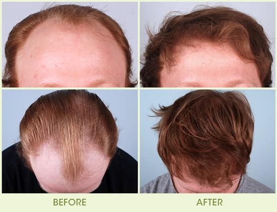 Neograft Hair Transplantation System Boston Plastic Surgery