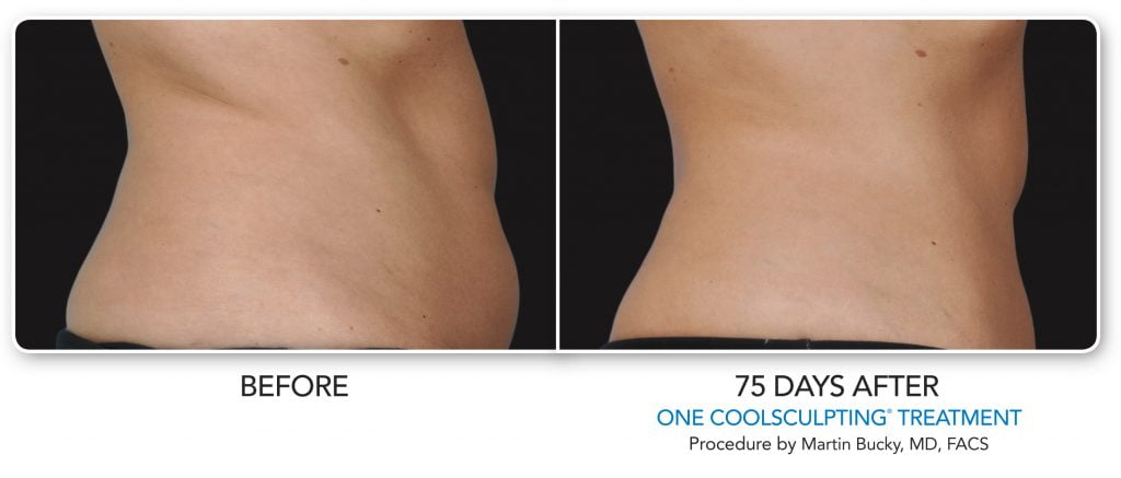 coolsculpting fat reduction results