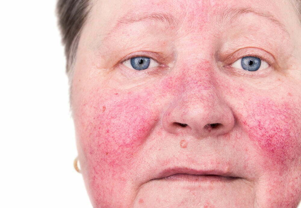 woman with redness across her cheeks and nose, symptoms of rosacea