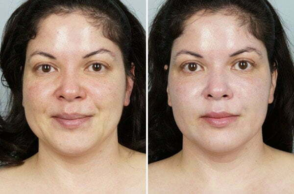 CoolPeel Before and After Patient
