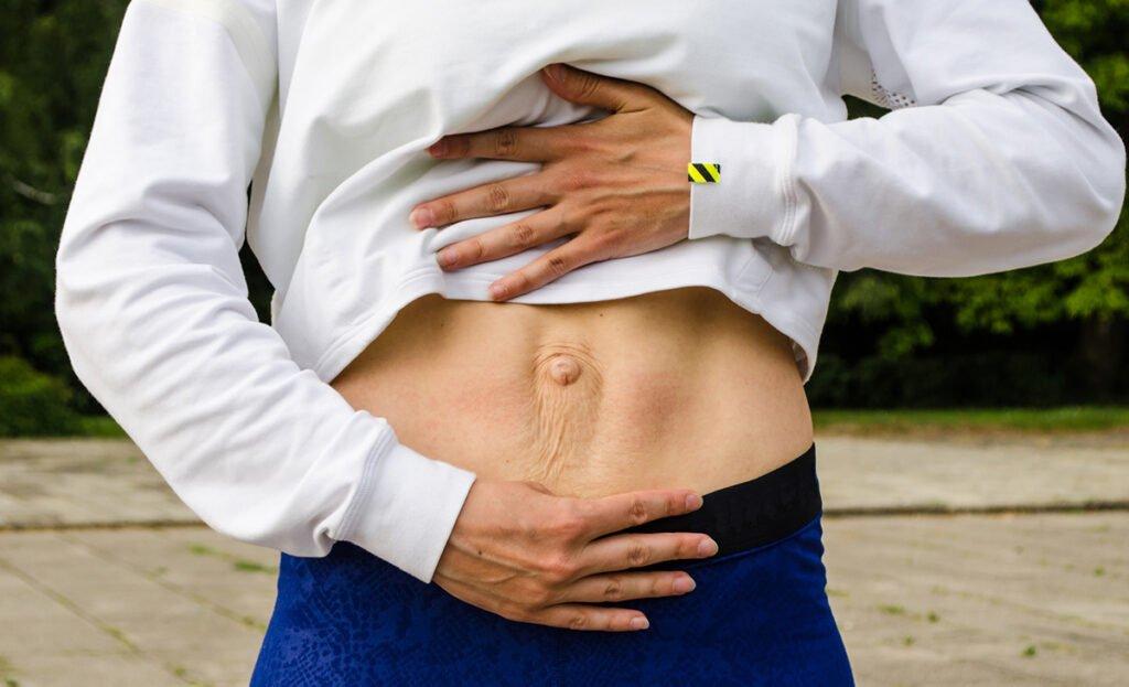 Dr. Samaha Answers Questions about Diastasis Recti